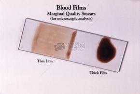 """为此做好了准备幻灯片提供的""""边际质量""""厚膜和薄膜血涂片外观的例子。"""