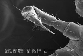 在菲尔#9241半放大率,这个2006扫描电子显微镜(SEM)示出的右侧弯曲的前脚的背面观